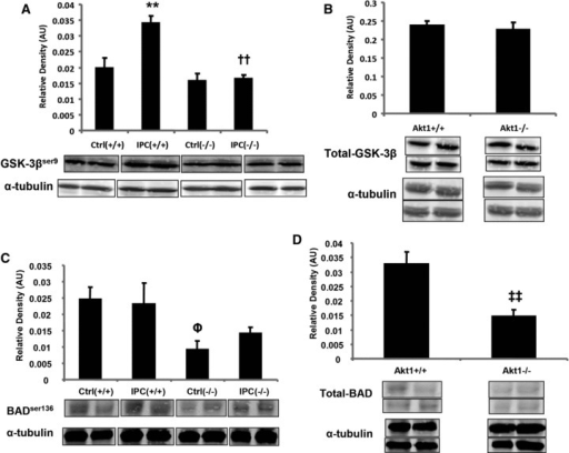 Immunoblot analysis of heart samples from Akt1+/+ and Akt−/− mice subjected to either 15 min. of stabilization (Control, Ctrl) or one cycle of IPC stimulus. Representative Western blot images show levels of (A) phospho-GSK-3βser9, (B) total GSK-3β, (C) phospho-BADSer136 and (D) total BAD. Representative bands were cut from a single blot for display purposes. Bottom panel of the bands represent the levels of α-tubulin used as loading control. Average densitometric values are shown as histograms. All values are represented as means ± S.E.M., n = 4–8. *P ≤ 0.05 versus Ctrl; †P ≤ 0.05 versus IPC (+/+); ‡P ≤ 0.05 versus Ctrl (+/+); ‡P ≤ 0.05 versus Akt1+/+.