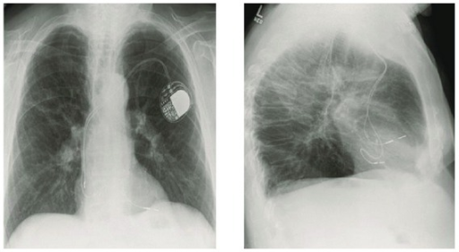 Chest radiograph PA and lateral projection showing the ventricular lead with an abnormal configuration.