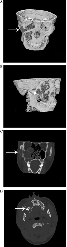 CT images. (A–C) Three-dimensional CT revealing a low density lesion located in the maxillary bone, zygomatic bone and maxillary sinus. (D) An axial scan revealing an impacted tooth. CT, computed tomography.