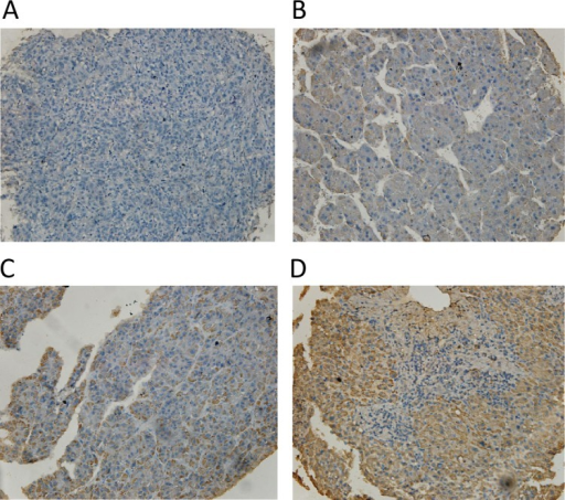 Different α-methylacyl-CoA racemase (AMACR) expression levels in hepatocellular carcinoma tumour tissues. As described in 'Methods' section, AMACR were semiquantitatively categorised into four groups: (A) negative (0), (B) weak (1+), (C) moderate (2+) and (D) strong (3+). (original magnifications 200×).