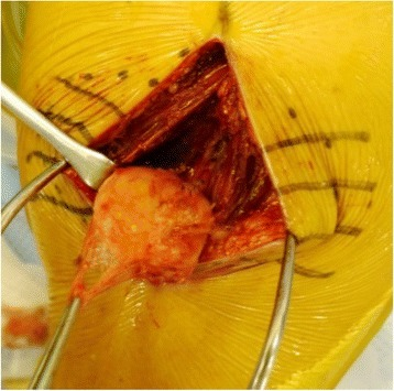 Intra-operative photograph of the tumor. During surgery, it was confirmed that the whole lesion was localized underneath the fascia and embedded within the deltoid.