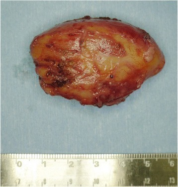 Post-operative photograph of the excised tumor. The excised tumor was 5cm×4cm×3cm in size and had a yellowish color like that of a lipoma.