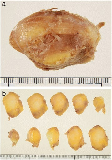 Photographs of the tumor after formalin fixation. (a) Formalin-fixed tumor. (b) The bisected surface of the tumor was whiter than that of a typical lipoma.