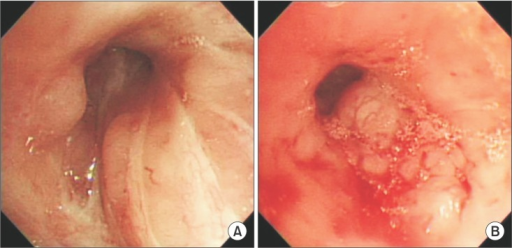 Bronchoscopy showing diffused bronchial nodular lesions with hypervascular mucosal changes and luminal narrowing at right upper lobe (A) and left upper lobe lingular division revealing almost near obstruction (B).