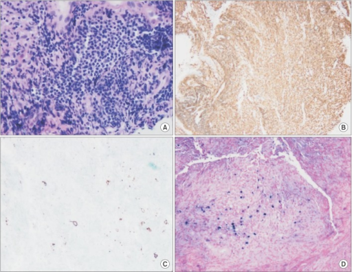 Pathology of endobronchial biopsy showing infiltration of lymphoid cells, scattered plasma cells, and histiocytes (A) at immunohistochemistry, a background of CD4+ T-cells (B) with CD20+ (C), and large atypical B cells with nuclear positivity for Epstein-Barr virus (EBV)-RNA (D) with EBV-encoded RNA probe after in-situ hybridization.