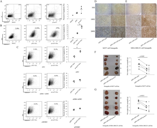 Synergistic effect of pi-sno75 and doxorubicin on apoptosis and on the growth of breast carcinoma cell lines in vitro and in vivo. (A) MCF7 cells were transfected with pi-sno75 or piNC; 48 h later, apoptosis was detected by FACS with Annexin-V/PI staining. (B) MCF7 cells were transfected by pi-sno75 or piNC. After 36 h, doxorubicin (Dox) was added to the cells for 12 h, and apoptosis was analysed by FACS. (C) After DR4 plus DR5 or WDR5 knockdown, impacts of pi-sno75 on apoptosis in MCF7 cells incubated with Dox were analyzed by FACS with Annexin-V staining. (D and E) After tumor formation without drug treatments, Immunohistochemistry (IHC) analysis of TRAIL expression in the MCF7 (D) or MDA-MB-231 (E) xenografts with pi-sno75 overexpression or with control vector. anti-TRAIL antibody was used as the primary antibody. (F and G) Tumor weights of MCF7 xenografts (F) or MDA-MB-231 (G) xenografts with pi-sno75 overexpression or control vector. The paired t-test was used. Data represent mean ± SD (error bars). *, statistically significant, ≤0.05.