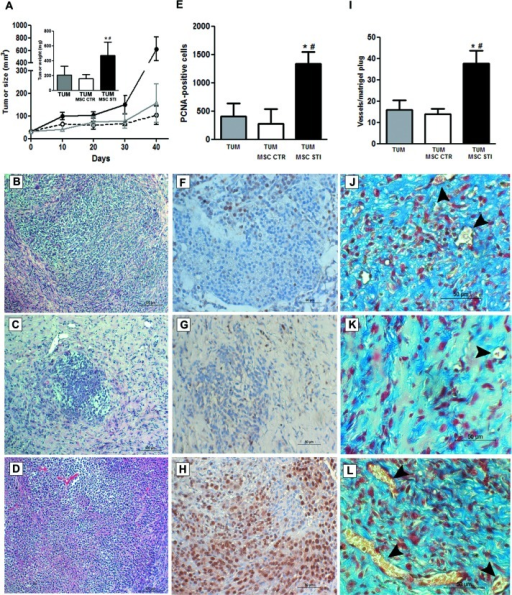 Effects of CSC-EV stimulated MSCs on in vivo tumor growthExperiments were performed in SCID mice that were divided in three groups (6 mice per group): subcutaneous injection of 1×106 K1 tumor cells (TUM); subcutaneous injection of 1×106 K1 tumor cells with 5×105 non-stimulated MSCs (TUM MSC CTR); subcutaneous injection of 1×106 K1 tumor cells with 5×105 2 weeks stimulated MSCs. Tumor growth was evaluated for 40 days and posterior analysis were performed in 5 μm paraffin tumor sections. (A) measurement of tumor growth during 40 days. TUM = gray line; TUM MSC CTR = dotted black line; TUM MSC STI = black line. The inset indicates the tumor weight measured after 40 days and each condition is identified in the abscissa. Representative hematoxylin and eosin staining of sections from the three experimental conditions: (B) TUM condition. (C) TUM MSC CTR condition. (D) TUM MSC CTR STI condition. (E) quantification of PCNA-positive cells in 10 random fields for each section at ×20 magnification. Each condition is indicated in the abscissa. Representative images of PCNA immunohistochemistry: (F) TUM condition. (G) TUM MSC CTR condition. (H) TUM MSC STI condition. (I) quantification of tumor vasculature measured by counting the number of erythrocyte-containing vessels in 10 random fields in trichrome stained tumor sections at original magnification × 20. Each condition is indicated in the abscissa. Representative images of tumor vasculature of the three groups: (J) TUM condition. (K) TUM MSC CTR condition. (L) TUM MSC STI condition. Statistical analysis was performed by ANOVA with Newman-Keuls multicomparison test: *, # indicates statistical difference to the TUM group and TUM MSC CTR group respectively (P < 0.05; n = 6).