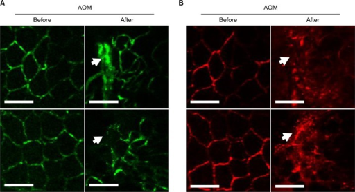 Development of disharmonized region between the Tie2-labeling endothelial cells and perfused vessels during angiogenesis. (A) To induce a colon tumor in the Tie2-green fluorescent protein (GFP) mouse, azoxymethane (AOM, Sigma Aldrich, St. Louis, MO, USA) was injected intraperitoneally at −5 mg/kg. One week later, the mice were given 3% dextran sulfate sodium (DSS; MP Biochemicals, Solon, OH, USA) in drinking water for 5 days, followed by normal drinking water. The colons of the mice were imaged using side-view confocal endomicroscopy at week 8 after the DSS treatment. (B) Intravenously-injected rhodamin-dextran conjugates (500 μg/100 μL, 2,000,000 MW; Invitrogen, Waltham, MA, USA) were used for the imaging of the perfused vessels. The arrows indicate a significantly disharmonized area between the Tie2-GFP and the perfused rhodamin-dextran in the tumor region. Scale bars: 100 μm.