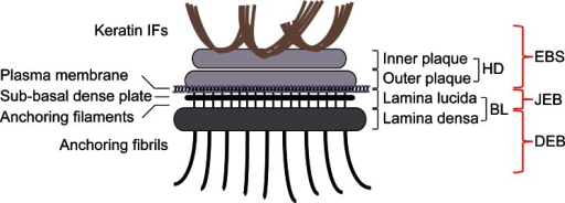 Schematic representation of a hemidesmosome and location of blisters within the skin in different types of EB. Keratin IFs are attached to the inner plaque of the hemidesmosome (HD). The outer plaque is parallel to the inner plaque, is slightly larger and lies on the plasma membrane of basal keratinocytes. Adjacent to the membrane are an electron-clear zone, the lamina lucida and an electron-dense zone, the lamina densa, which together make up the basal lamina (BL). Within the lamina lucida and directly below the plasma membrane, there is a thin electron dense line corresponding to the sub-basal dense plate. Fine anchoring filaments originate at HDs, traverse the lamina lucida and insert into the lamina densa. From the lamina densa collagenous anchoring fibrils extend into the dermal tissue. Outer brackets on the right indicate blister formation at different levels within the skin as is characteristic for the three major types of EB: EBS, within the epidermis; JEB, at the dermal-epidermal junction within the lamina lucida; DEB, in the upper layers of the dermis