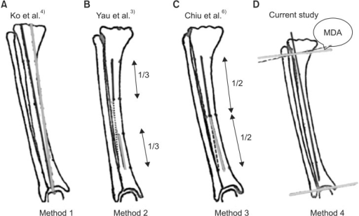 Four different methods to measure extra-articular tibia | Open-i