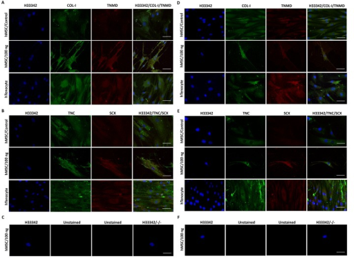 The candidate tenogenic markers (COL-I, TNMD, TNC and SCX) expression of GDF5 (100 ng/ml)-induced hMSC on day 4 (A, B, C) and day 10 (D, E, F) by immunofluorescence imaging.The extent of candidate tenogenic markers expressions were increased in GDF5 treated hMSC compared to the untreated control. An increase in the intensity of the expression of these markers was also observed in day 10 GDF5-induced hMSCs compared to that of day 4. Images were captured at 63X objective and a scale bar (50 μm) was depicted on the right bottom corner of the overlay images.