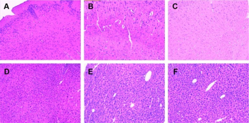 The images of hematoxylin and eosin staining tissue sections of mice after intragastric administration of mesalamine-coated microparticles and mesalamine suspensions.Notes: Mesalamine-coated microparticles: (A) stomach, (B) small intestine, and (C) colon. Mesalamine suspensions: (D) stomach, (E) small intestine, and (F) colon. Magnification, ×500.