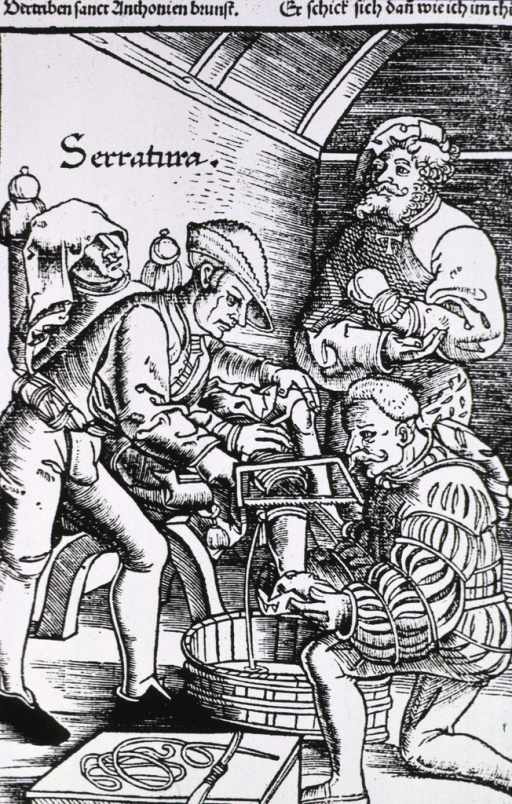 <p>Man in chair having leg amputated, interior scene with surgeon and assistant, and spectator who has lost left hand.</p>