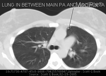 Axial CT in lung windows demonstrate lung in between aorta and left main pulmonary artery.