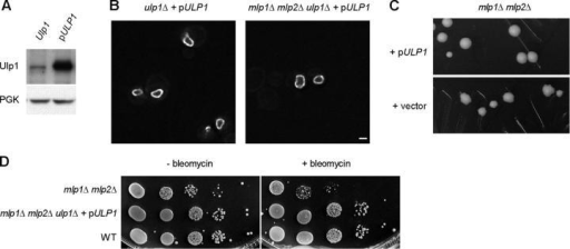 Overexpression of Ulp1 restores its localization at the nuclear envelope and rescues the nibbled colony morphology as well as the bleomycin sensitivity of mlp1Δ mlp2Δ strains. (A) Ulp1 proteins, tagged with GFP, were expressed from the ULP1 promoter (Ulp1) or from the NOP1 promoter on a CEN plasmid (pULP1). In the latter case, the endogenous ULP1 gene was deleted. Total protein was extracted and subjected to immunoblot analysis using polyclonal anti-GFP antibody. The same blot was stripped and reprobed with anti-PGK antibody to check loading consistency. (B) Ulp1 tagged with GFP was expressed from the NOP1 promoter in ulp1Δ or mlp1Δ mlp2Δ ulp1Δ strains. Fluorescent images of Ulp1-GFP in live cells were taken at 14 Z-sections (step size = 0.3 μm), and the center sections are shown. Bar, 2 μm. (C) The mlp1Δ mlp2Δ strain was transformed with pULP1 or with a vector. Transformants were streaked out on selective medium and grown at 30°C for 3 d before being photographed. (D) Sensitivity to bleomycin (5 μg/ml) was tested for the mlp1Δ mlp2Δ ulp1Δ strain containing pULP1, the mlp1Δ mlp2Δ strain containing the vector, and the wild-type strain containing the vector. Mid-log phase SC-Leu–grown cells were spotted at 10-fold serial dilutions (from 105 to 10 cells) onto plates with or without bleomycin.