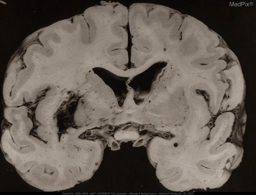 Gross Brain. Hemorrhagic necrosis is most conspicuous in the putamen. Also affected are the globus pallidus, claustrum, and adjacent white matter.