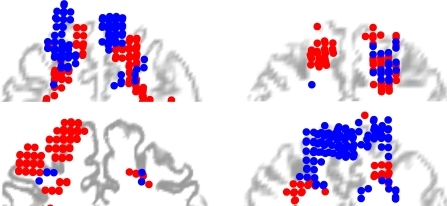 Spatial distribution of FEF voxels connected to the SC (red circles) or to the CN (blue circles), in MNI space, plotted in coronal view for four subjects. The circles are projected to a 2D coronal plane coinciding with a coronal section of the T1 scan normalized to MNI, halfway the selected cluster of voxels to indicate their position with respect to the individual cerebral anatomy. Note that the distribution of selected FEF voxels entails 3 dimensions, and the T1 coronal section only 2. This projection is therefore only indicative of the course anatomical location of the voxels and does not exactly match sulcal anatomy.