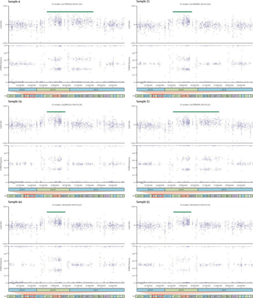 CNVs identified at chromosome 16p13.11Log R ratio and B allele frequency plots of the six copy number variants (CNVs; all duplications) larger than 500 kb identified at the chromosome 16p13.11 region in participants with attention-deficit hyperactivity disorder.