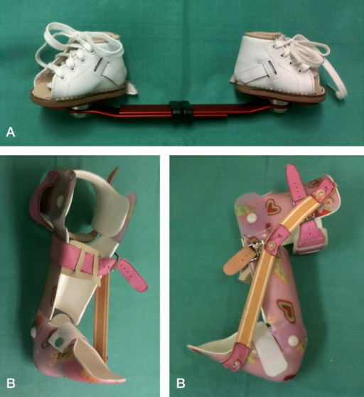 A. Bilateral foot abduction brace. B. Unilateral foot abduction brace, side and frontal view.