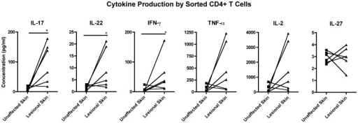 Sorted CD4+ T cell cytokine production.Cytokine production by sorted CD4+ T cells from unaffected and lesional skin from psoriasis patients, with stimulation with PMA-ionomycin. Comparative chart representing IL-17A, IL-22, IL-2, IFN-gamma, TNF-alpha and IL-27. * = p<0.05.