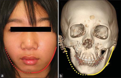 The 12-year-old girl with type IIb right-sided hemifacial microsomia, (a) Frontal view. The dashed red line is a reflected image of solid red line of unaffected side and indicates asymmetry of mandibular contour, (b) Computed tomography (CT) image. The dashed yellow line is a reflected image of solid yellow line of unaffected side