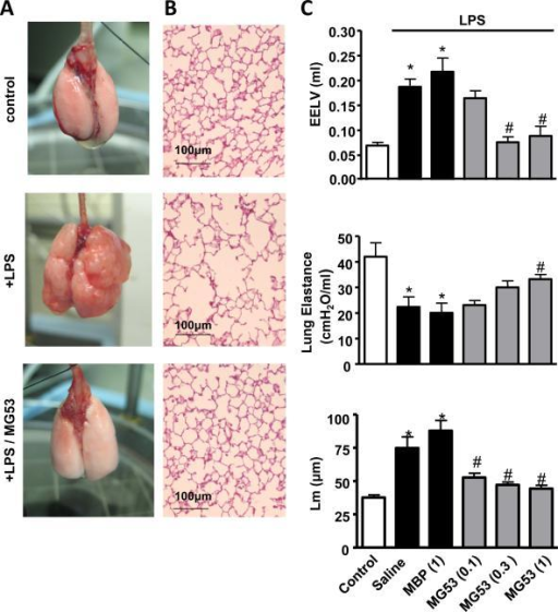 Intra-tracheal application of rhMG53 protects LPS-induced lung remodeling in mice. Animals were first treated with LPS (i.t., 3 times per week, for 5 weeks) followed by MBP-MG53 or MBP-MBP in control group (i.t., 5 days/week for 5 weeks). Lungs were collected 5 weeks after initial LPS application for evaluation. A. MBP-MG53 prevents emphysema in LPS-induced chronic lung remodeling. B. Histology H/E staining of parenchyma in LPS-induced emphysematous lung (Scale bars are equal to 100 μm). C. Statistical results for EELV, lung elastance and Lm in LPS-induced emphysematous lung treated with different doses of rMG53 (mg/kg, 0.1, 0.3, 1.0) and 1 mg/kg control protein, n=7-10, *P<0.05 compared to no LPS control group (open bar) and #P<0.05 compared with saline-treated, LPS-challenged group. n=7-10 (Mann-Whitney U analysis).