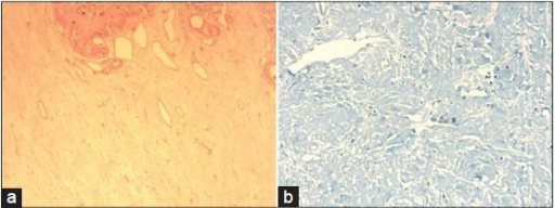 (a) Hematoxylin and eosin stain (X50): Renal tissue with variably angulated and dilated blood vessels, distributed in a copious hyaline fibrous matrix. The spindle cells in the stroma did not show any atypia or pleomorphism. (b) Human melanoma black 45 immunostaining (X200): Negative, rules out angiomyolipoma