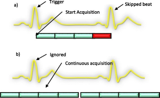 Acquisition schematic for gated and ungated. a) Schematic of a gated acquisition. The scanner starts acquisition with the detection of the R wave. However, even before the 4th slice is acquired, another R wave is detected. This is possible if for example the heartrate increases. b) Schematic of an ungated acquisition. The scanner ignores the trigger signal and does a continuous acquisition.