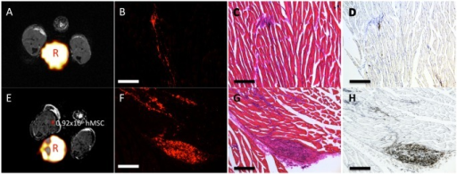 "Representative endpoint MRI, fluorescence microscopy, and immunohistochemistry acquired at 10x magnification from both implant models.(A) By day 16, 5/7 immune competent mice had no 19F signal remaining as shown by the representative MRI. The reference tube is marked by ""R"". (B) Fluorescence microscopy of the muscle tissue revealed little red fluorescence remaining in the immune competent mice. No GFP+ mMSC were detectable by fluorescence microscopy, suggesting the original mMSC are no longer present. (C) H&E staining reveals the presence of cells at the implant site which correlate well with the remaining 19F red fluorescence. (D) Immunohistochemistry staining of adjacent tissue sections with the anti-F4/80 antibody reveals the presence of a few macrophages at this location in the immune competent model. (E) At endpoint, all immune compromised mice had detectable 19F-MRI signal remaining. (F) We observed more red fluorescence from the 19F-label at the transplant site in the immune compromised mice. (G) Once again, H&E staining in the immune compromised model correlates well with the regions of red fluorescence. (H) Macrophage staining of the immune compromised model reveals many more F4/80 positive cells at the site of implantation. Furthermore, the fluorescence microscopy of neighboring tissue sections reveals that the red fluorescence from the 19F agent is in the same location as the macrophages. Once again, scale bars represent 250μm."