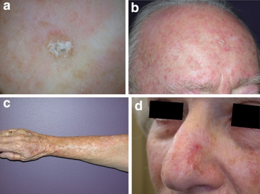 Clinical variants of AKs. a Hyperkeratotic AK. b AK with field change (forehead and partial scalp). c Classical AK (milder degree of field change on the arm). d AK with adjacent hyperpigmented areas. AK Actinic keratosis. Images are published with permission from the New Zealand Dermatological Society Incorporated