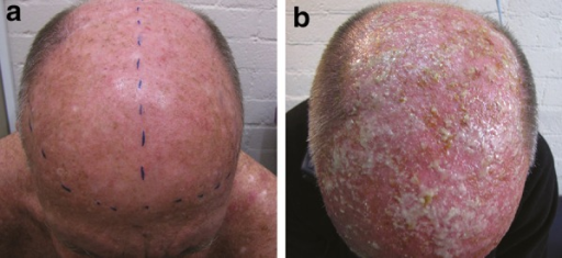 Pustulation in a patient with marked AK a pre-treated with retinoic acid and b followed by methyl aminolevulinate photodynamic therapy. AK Actinic keratosis. Reproduced with permission from Tran and Salmon [43]