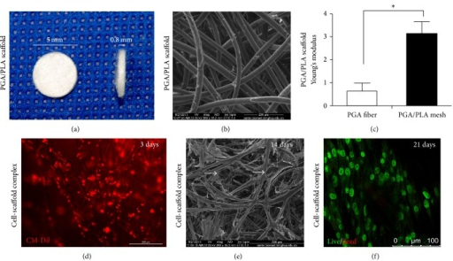 Characterization of PGA/PLA mesh and hADSCs-PGA/PLA complex. Cylinder-shaped PGA/PLA mesh (a). SEM examination of PGA/PLA polymer (scale bars: 200 μm, (b)). Mechanical property of PGA fiber alone and PGA/PLA complex (c). CM-Dil labeled (stained red) hADSCs-PGA/PLA complex 3 days after seeding (scale bars: 200 μm, (d)). SEM examination of hADSCs-PGA/PLA complex with an initial cell seeding density of 10 × 106/mL cultured 14 days after seeding (scale bars: 500 μm, (e)). Live (stained green) and dead staining (stained red) of hADSCs-PGA/PLA complex 21 days after seeding visualized by laser confocal microscopy (scale bars: 100 μm, (f)).
