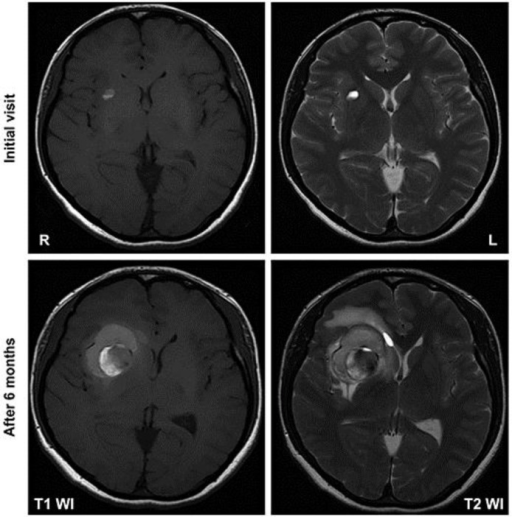MRI scans obtained at the onset of initial symptoms show the right basal nucleus iso-to-hyperintense area on T1- (left) and T2-weighted (right) images (top). MRI scans obtained 6 months after the onset of initial symptoms show the iso-to-hyperintense area surrounded by a hyperintense zone on T1- (left) and T2-weighted (right) images (bottom).