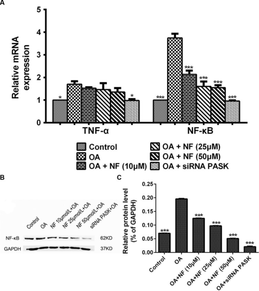 "(A) The effect of nuciferine or siRNA PASK on the mRNA level related to inflammation in HepG2 cells. (B,C) The effect of nuciferine and siRNA PASK on the expression of proteins related to inflammation in HepG2 cells. SiRNA PASK HepG2 cells and HepG2 cells incubated with increased concentrations of nuciferine (NF: 10, 25, and 50 μM) both treated with OA (40 μM). The measurement was described in the Section ""Materials and Methods"". Values are Mean ± SEM of three independent experiments performed in triplicates. Significant differences with OA group were designated as those ∗P < 0.05 and ∗∗∗P < 0.001. (Control, siRNA scrambled; NF, Nuciferine.)"