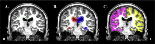 Calculation of WMH volume from periventricular region and gray–white matter junction. (A) The white matter hypointensity (WMH) mask (green clusters) from a single subject is overlaid on (B) the dilated ventricle masks (red = right lateral and inferior ventricle; blue = left lateral and inferior ventricle) to calculate the total number of WMH voxels that fall within the periventricular region. The WMH mask is overlaid on (C) the dilated white matter surface mask (pink = right hemisphere; yellow = left hemisphere) to calculate the total number of WMH voxels that fall within the gray–white matter junction (GWJ).