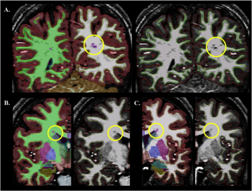 Location of WMH-labeled clusters. Images depict T1-weighted scans of individual ASD participants. The subcortical segmentation overlay is depicted on the left-sided images for A–C. WMH clusters are purple (circled). (A) WMH cluster in the perivascular region; (B–C) WMH clusters in the periventricular region.