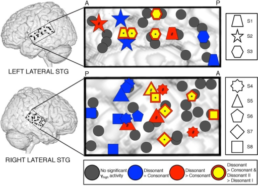 Spatial distribution of electrodes with differential responses to consonant and dissonant chords in left and right lateral STG. Electrodes located within the STG for all subjects are shown superimposed on a model brain for each hemisphere. Gray electrodes show minimal or no significant γhigh (70–150 Hz) activity in response to any chord type; blue electrodes show no difference in γhigh activity between consonant and dissonant chords (Wilcoxon rank-sum, p > 0.05); red electrodes show increased γhigh activity in response to dissonant chords than consonant chords (Wilcoxon rank-sum, p < 0.05); yellow electrodes with a red border show greater γhigh activity in response to dissonant type II chords than dissonant type I chords (Wilcoxon rank-sum, p < 0.05). Significant electrodes in both Dissonant > Consonant and Dissonant II > Dissonant I conditions after FDR multiple comparisons correction of q = 0.05 are marked with a *, and significant electrodes in only the Dissonant > Consonant condition are marked with a #. Onset and duration of FDR-corrected significant increases in γhigh activity vary per electrode and is detailed in Table 2. Each shape denotes an individual subject. P – posterior, A – anterior.