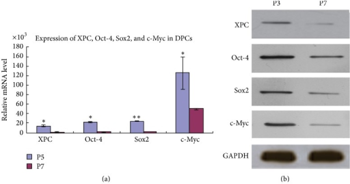 Expression of XPC, Oct-4, Sox2, and c-Myc in DPCs at various passages. Real-time PCR showed that mRNA expression of XPC, Oct-4, Sox2, and c-Myc was significantly higher in DPCs at passage 3 compared with passage 7 (a) (∗p < 0.05, ∗∗p < 0.001). Western blot showed that the protein expression of XPC, Oct-4, Sox2, and c-Myc revealed similar expression pattern with real-time PCR, which was stronger in DPCs at passage 3 compared with passage 7 (b).