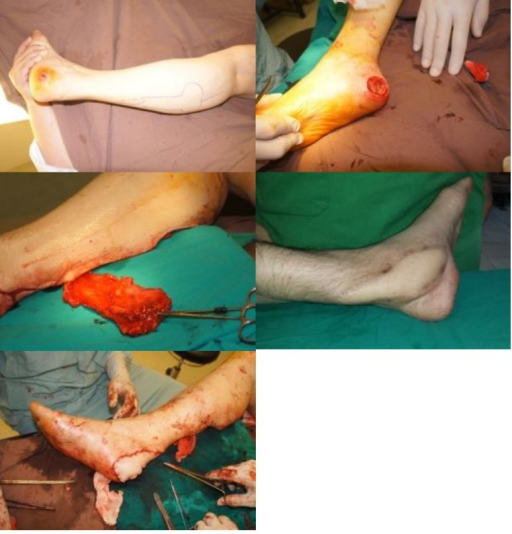 Sural flap for heel soft tissue defect reconstruction