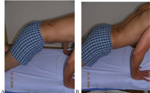 "Test protocol – Rocking forwards. A. Correct – Rocking forwards without extension movement of the low back.B Not correct Hip movement leads to extension of the low back Rating protocol: As patients did not know the tests, only clear movement dysfunction was rated as ""not correct"". If the movement control improved by instruction and correction, it was considered that it did not infer a relevant movement dysfunction."
