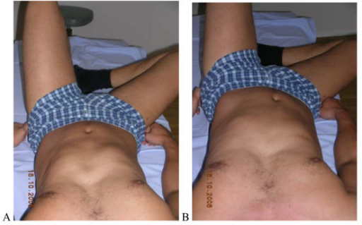 "Test protocol -Crook lying. (supine, knees bent), A. Correct – Active abduction of the hip without rotational movement of the pelvis and low back. B Not correct Belly button moves sidewards, pelvis rotates or tilts. Rating protocol: As patients did not know the tests, only clear movement dysfunction was rated as ""not correct"". If the movement control improved by instruction and correction, it was considered that it did not infer a relevant movement dysfunction. Rating protocol: As patients did not know the tests, only clear movement dysfunction was rated as ""not correct"". If the movement control improved by instruction and correction, it was considered that it did not infer a relevant movement dysfunction."
