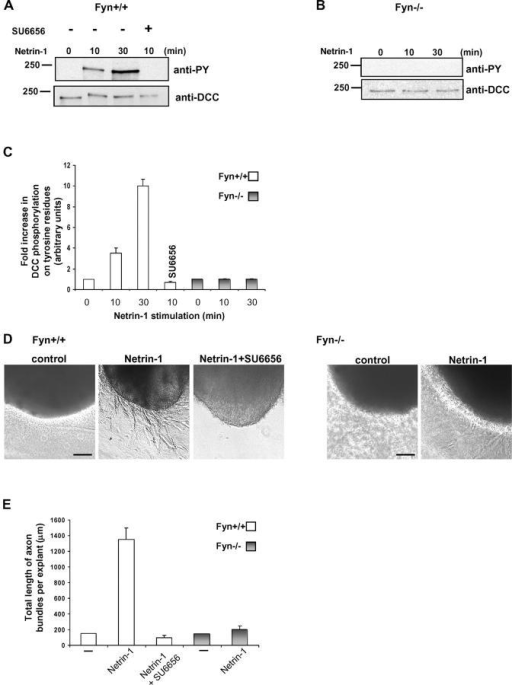 Netrin-1–induced DCC phosphorylation on tyrosine residues and neurite outgrowth are impaired in Fyn−/− mice. (A) E11.5 Fyn+/+ mouse CN were or were not stimulated with Netrin-1 for 10 or 30 min. The neurons were also pretreated with SU6656 before a 10-min stimulation with Netrin-1. DCC was immunoprecipitated from the cell lysates and the products were analyzed by SDS-PAGE. The membrane was immunoblotted with anti-pY and anti-DCC antibodies. (B) E11.5 CN dissected from Fyn−/− mice were or were not stimulated for 10 or 30 min with Netrin-1. DCC immunoprecipitates were analyzed by Western blot using anti-pY and anti-DCC antibodies. (C) Quantitative analysis of the phosphorylation level of DCC on tyrosine residues after Netrin-1 stimulation in E11.5 wild-type or Fyn−/− CN, determined by densitometry (n = 3). Error bars represent SD. (D) E11.5 dorsal spinal cord explants from Fyn+/+ or Fyn−/− mice were cultured for 20 h, alone (control) or in the presence of Netrin-1. Fyn+/+ explants were also treated with both Netrin-1 and SU6656. Bar, 100 μm. (E) Quantification of the total length of axon bundles per explant in micrometers (n = 36). Error bars represent SD.
