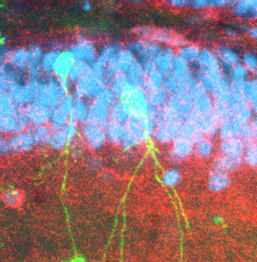 Transplanted NG2+ cells (green) become functional inhibitory interneurons.