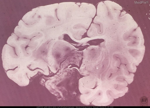 A large chromophobe adenoma has grown upward and fille the IIId ventricle and extended into the hypothalamus and thalamus.