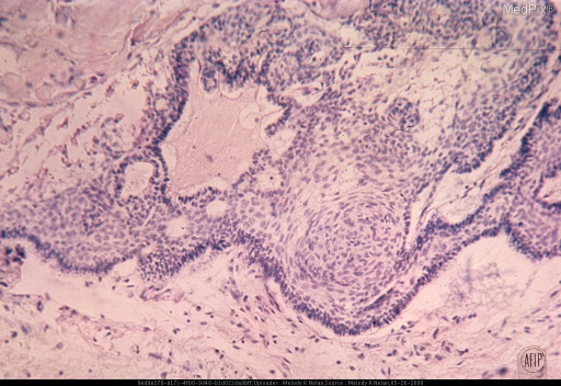 Multicystic tumor tissue composed of loosely arranged cells covered by a layer of densely packed, hyperchromatic, columnar to cuboidal epithelial cells. Note the whorl formation (epithelial pearl). The cysts are the result of degeneration within the tumor. Cresyl violet stain. x125