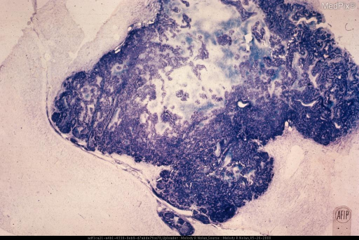 Cerebral cortical region, with a well-circumscribed metastatic carcinoma in which central necrosis has occurred. Nerve cells are preserved in the adjacent cortex. Cresyl violet stain. x6 ?