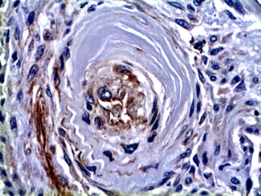 GDF-15 immunohistochemistry in a concentric lesion of a patient with PAH. Immunoreactiv-ity for GDF-15 is observed in cells lining the small remaining lumen of the concentric lesion (asterisk). Inset depicts a high-power view of the GDF-15 positive cells, which are probably endothelial cells (arrowheads). Original magnifications: × 200; Inset × 400.