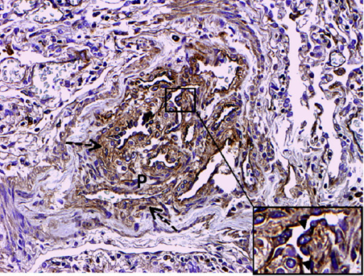 GDF-15 immunohistochemistry in a patient with PAH and Eisenmenger physiology. Intense signal for GDF 15 is noted in cells lining vascular channels. Inset shows prominent luminal staining of GDF-15 in endothelial cells (arrowhead). Note lower signal for GDF-15 in the connective tissue around the plexiform lesion, which probably represents GDF-15 bound to extracellular matrix (dashed arrows). Original magnifications: × 200; Inset × 400.