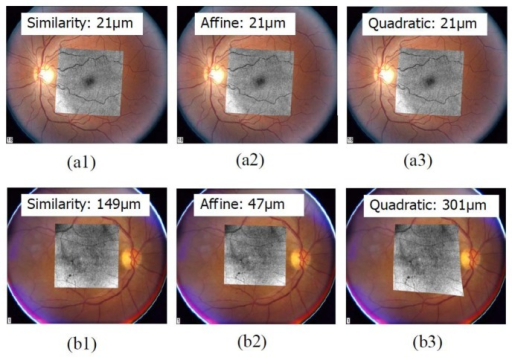 Examples of registration results. (a) Registration results for a normal eye by three transformation models. (b) Registration results for an eye with pathology. Registration errors in microns are displayed along with each figure.