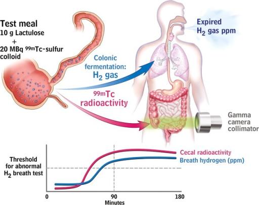 Fig3 Intestinal Microbiota In Functional Bowel Disorders